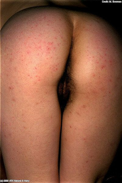 Nipples photo
